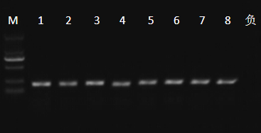 变性梯度凝胶电泳(PCR-DGGE)